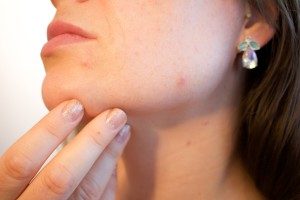 acne-1606765_1280